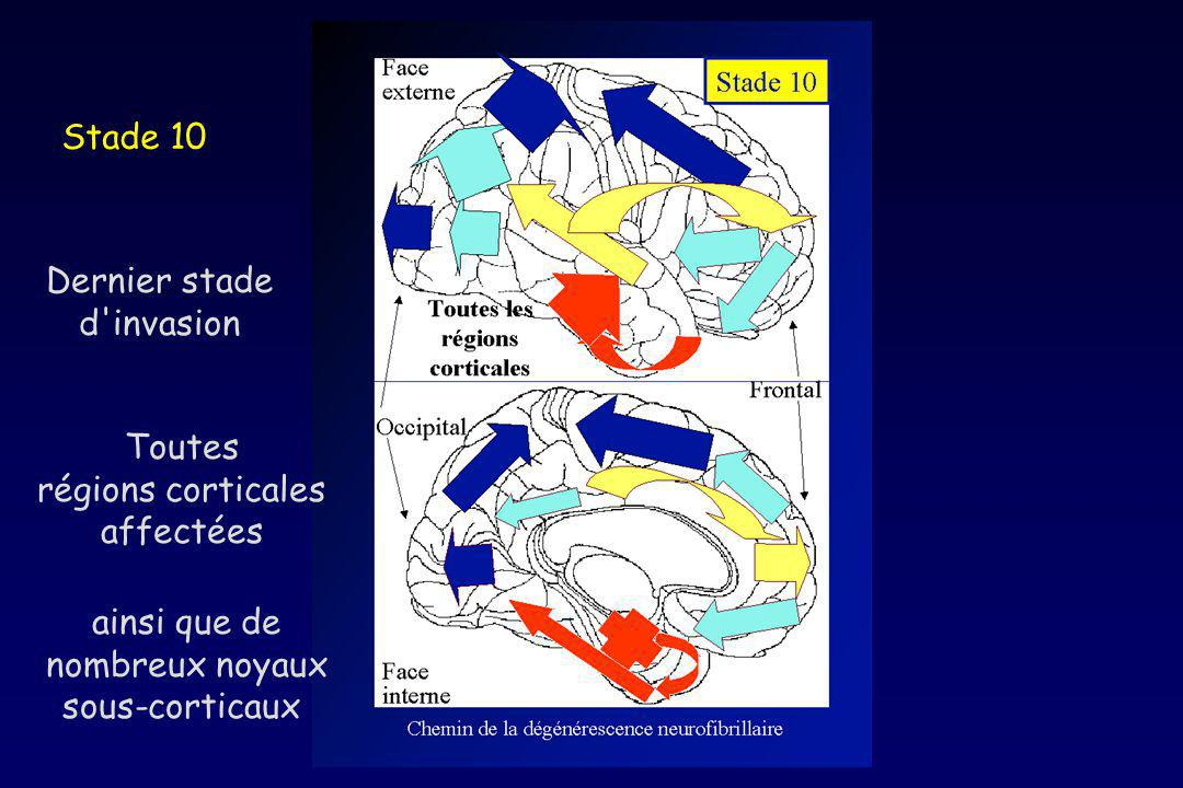 Stade 10 Dernier stade. d invasion. Toutes. régions corticales. affectées. ainsi que de. nombreux noyaux.