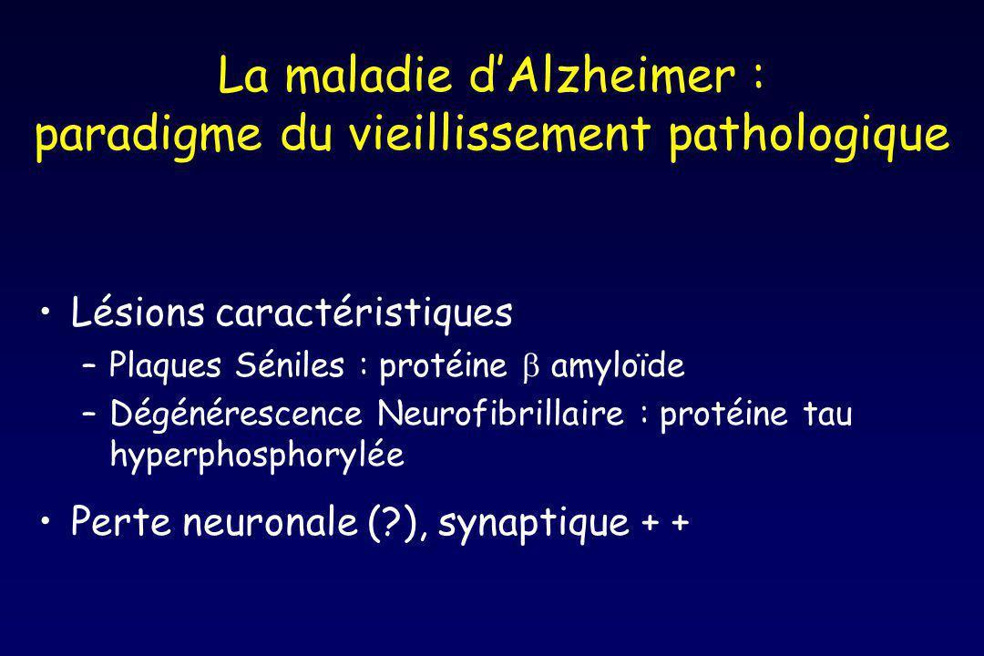 La maladie d'Alzheimer : paradigme du vieillissement pathologique
