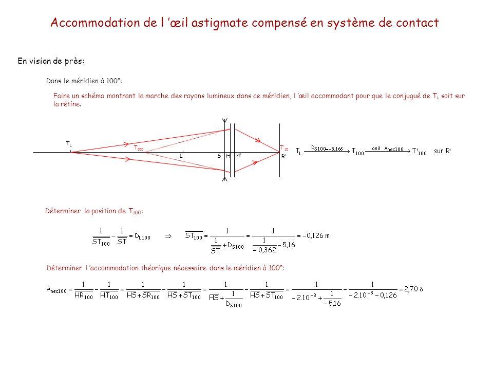 Accommodation de l 'œil astigmate compensé en système de contact