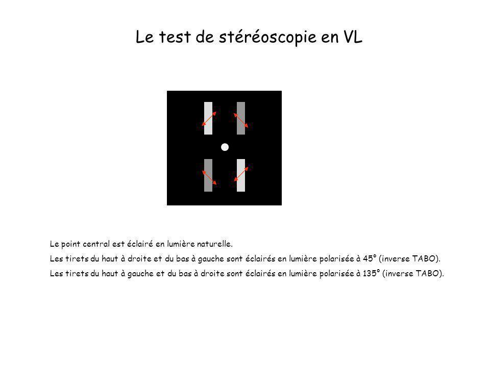 Le test de stéréoscopie en VL