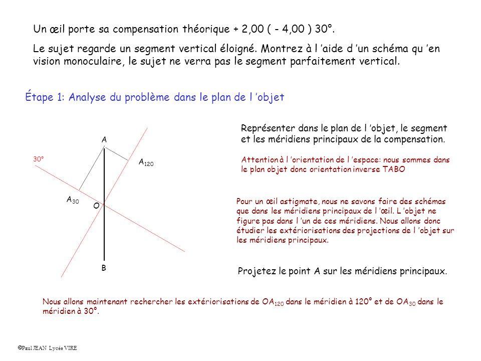 Un œil porte sa compensation théorique + 2,00 ( - 4,00 ) 30°.