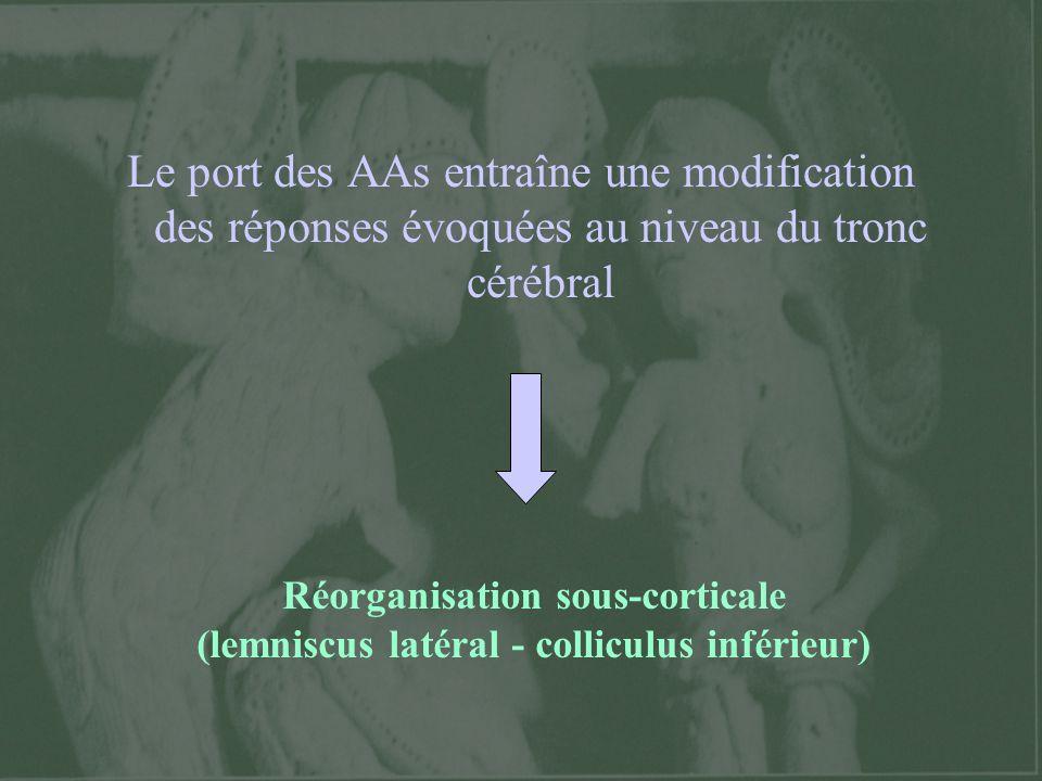 Le port des AAs entraîne une modification des réponses évoquées au niveau du tronc cérébral