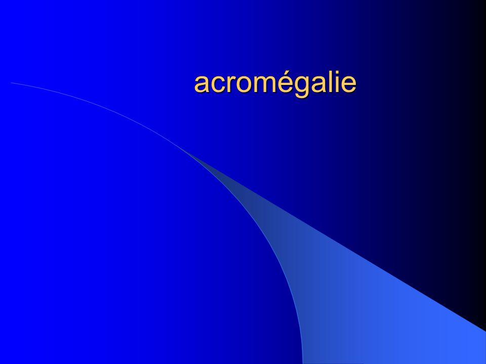 acromégalie
