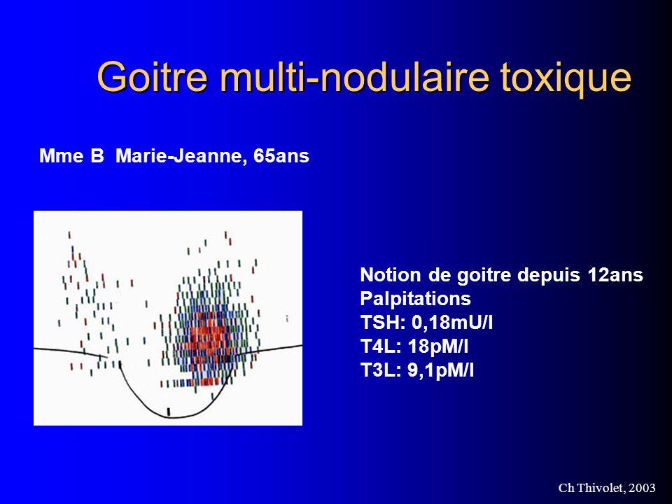Goitre multi-nodulaire toxique
