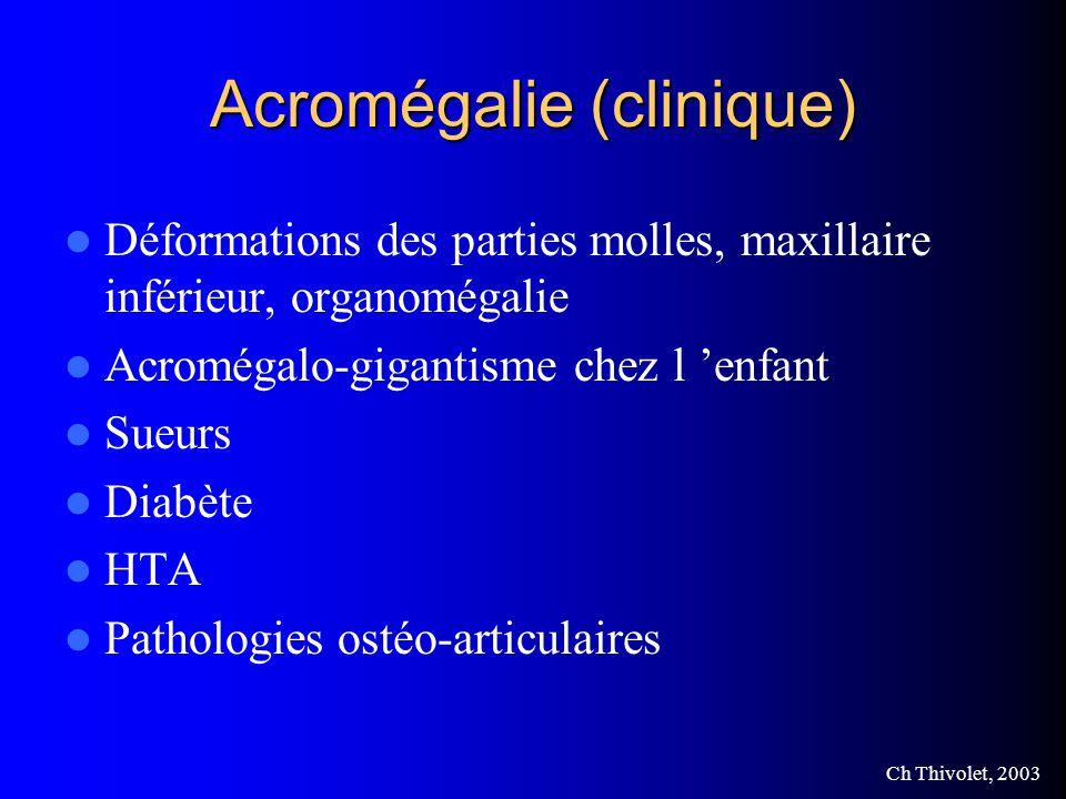 Acromégalie (clinique)
