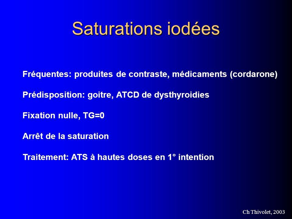 Saturations iodées Fréquentes: produites de contraste, médicaments (cordarone) Prédisposition: goitre, ATCD de dysthyroidies.