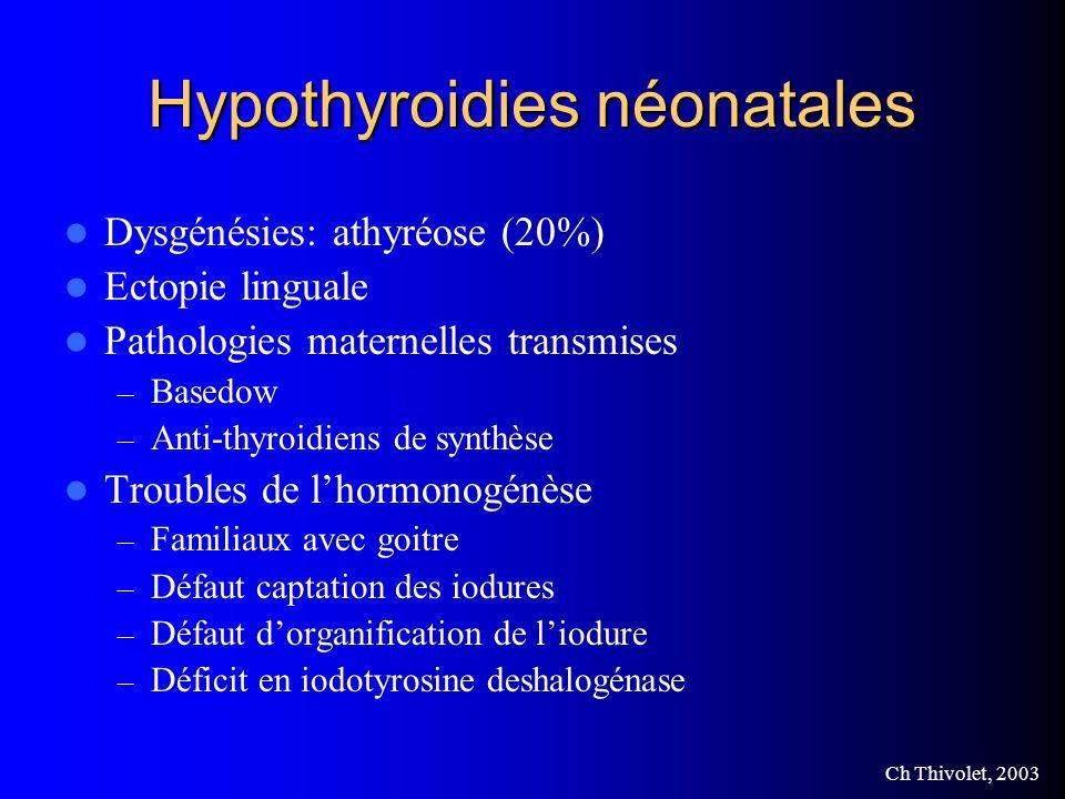 Hypothyroidies néonatales
