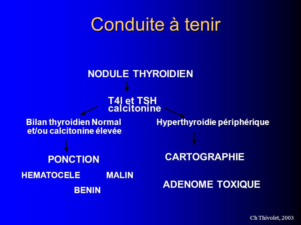 Conduite à tenir NODULE THYROIDIEN T4l et TSH calcitonine CARTOGRAPHIE