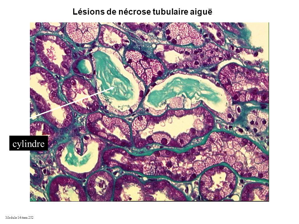 Lésions de nécrose tubulaire aiguë