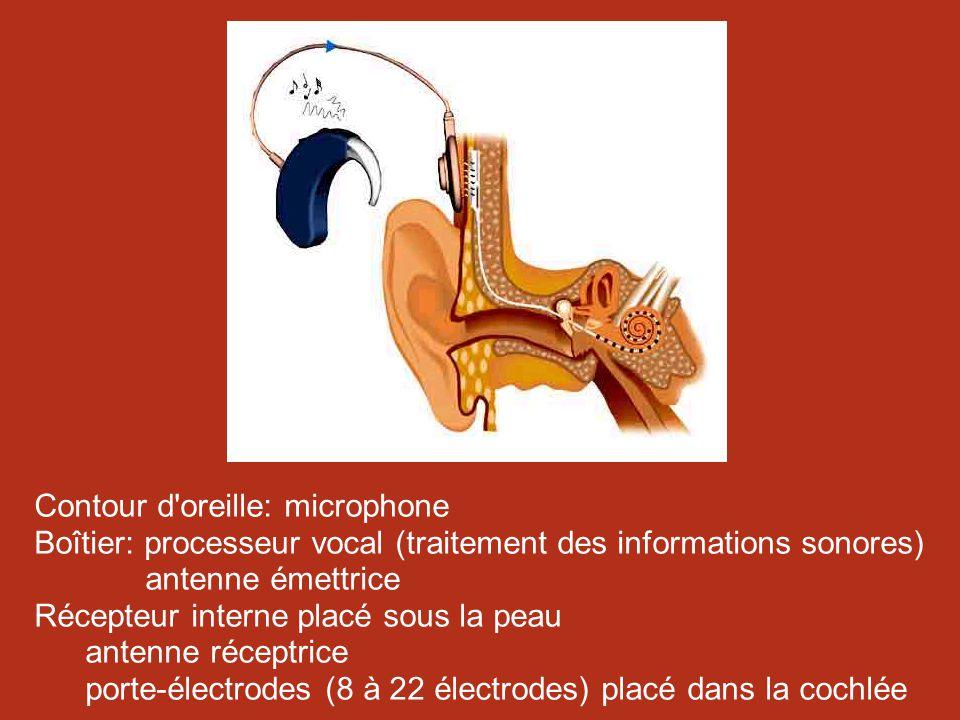 Contour d oreille: microphone