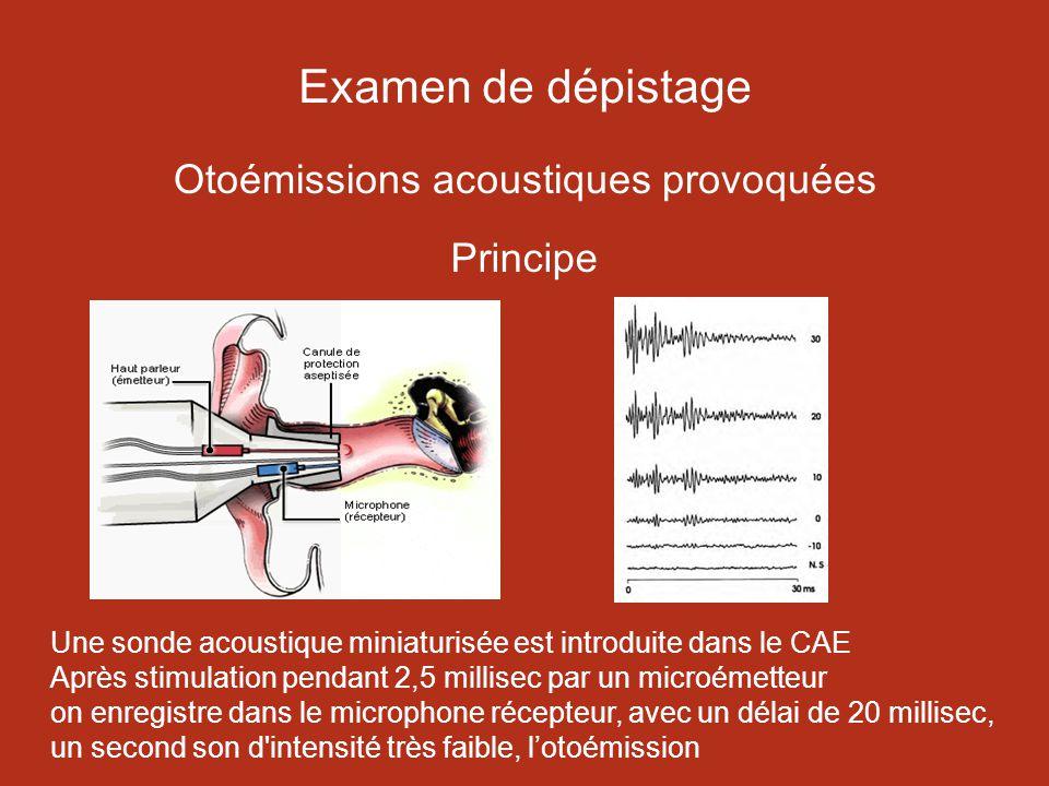 Examen de dépistage Otoémissions acoustiques provoquées Principe
