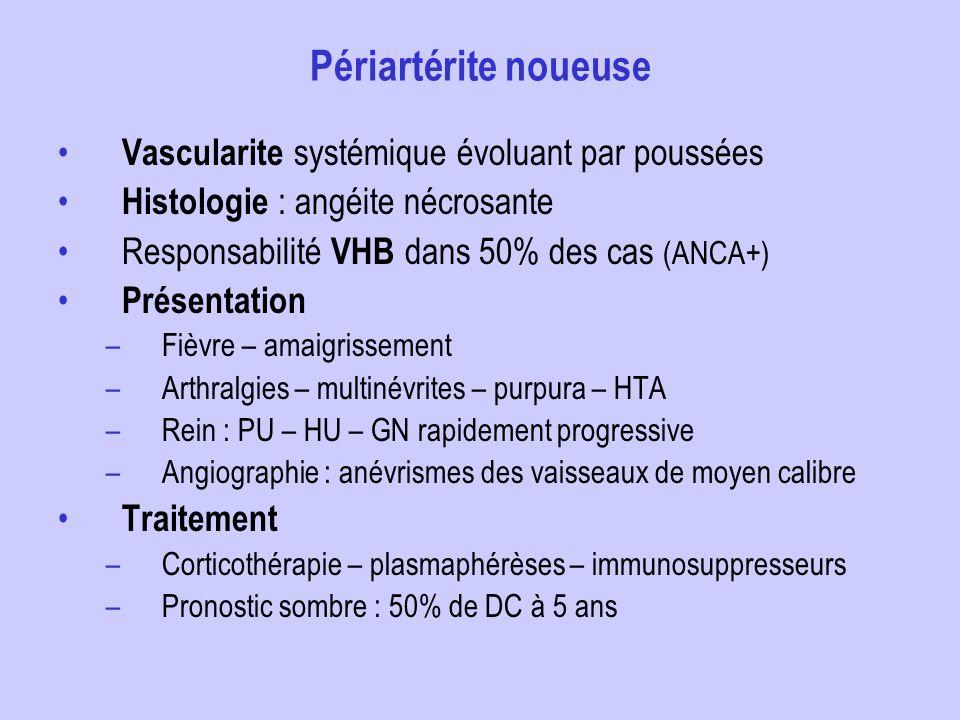 Périartérite noueuse Vascularite systémique évoluant par poussées