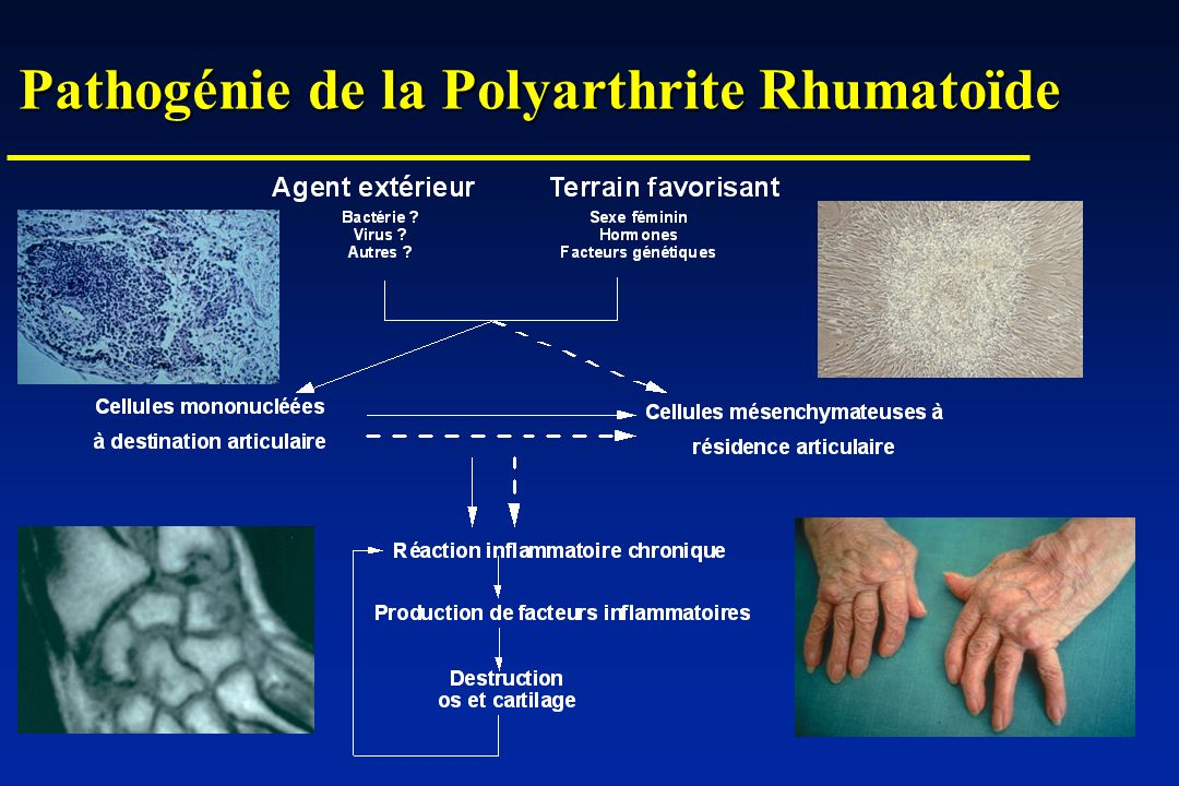 Pathogénie de la Polyarthrite Rhumatoïde