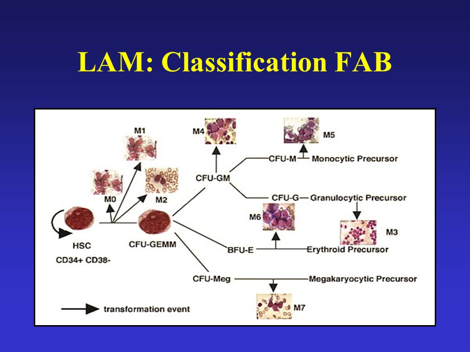 LAM: Classification FAB