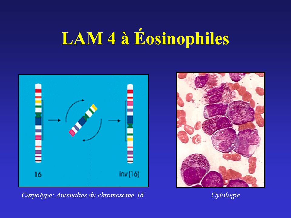 Caryotype: Anomalies du chromosome 16