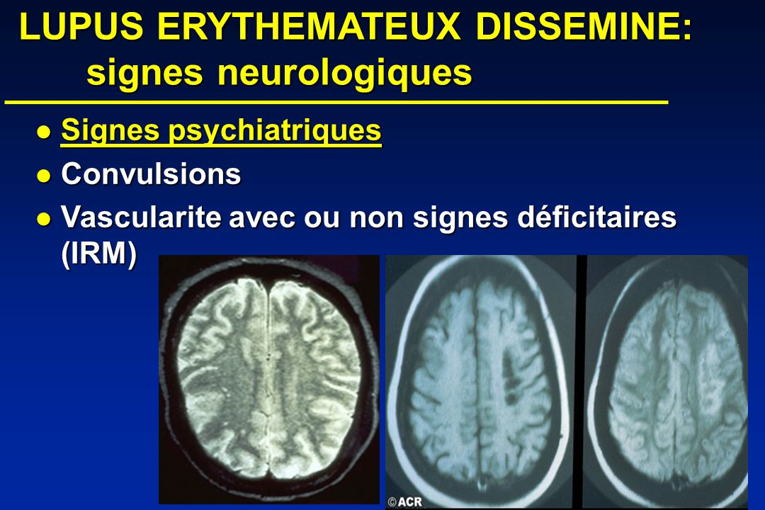 LUPUS ERYTHEMATEUX DISSEMINE: signes neurologiques