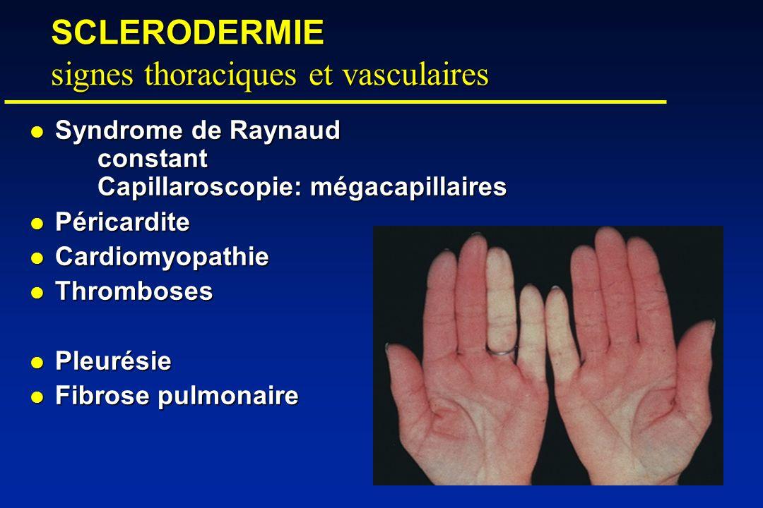 SCLERODERMIE signes thoraciques et vasculaires