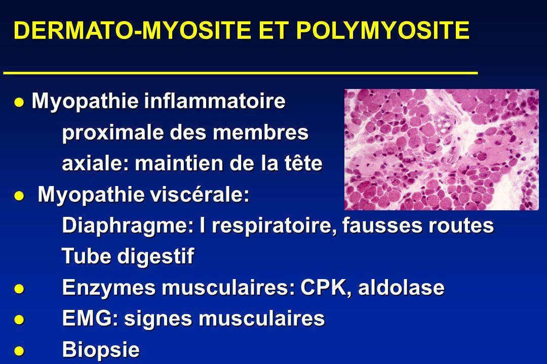DERMATO-MYOSITE ET POLYMYOSITE