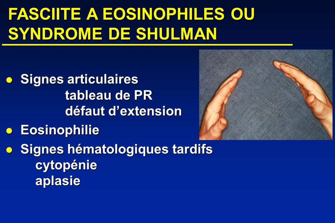 FASCIITE A EOSINOPHILES OU SYNDROME DE SHULMAN