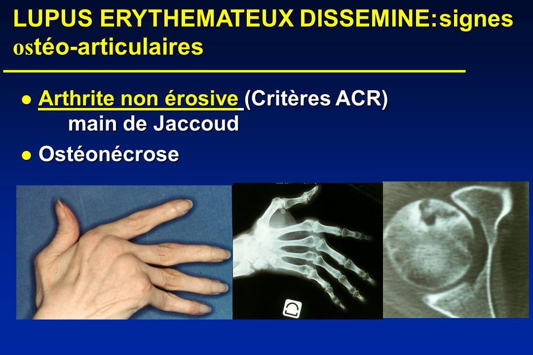 LUPUS ERYTHEMATEUX DISSEMINE: signes ostéo-articulaires