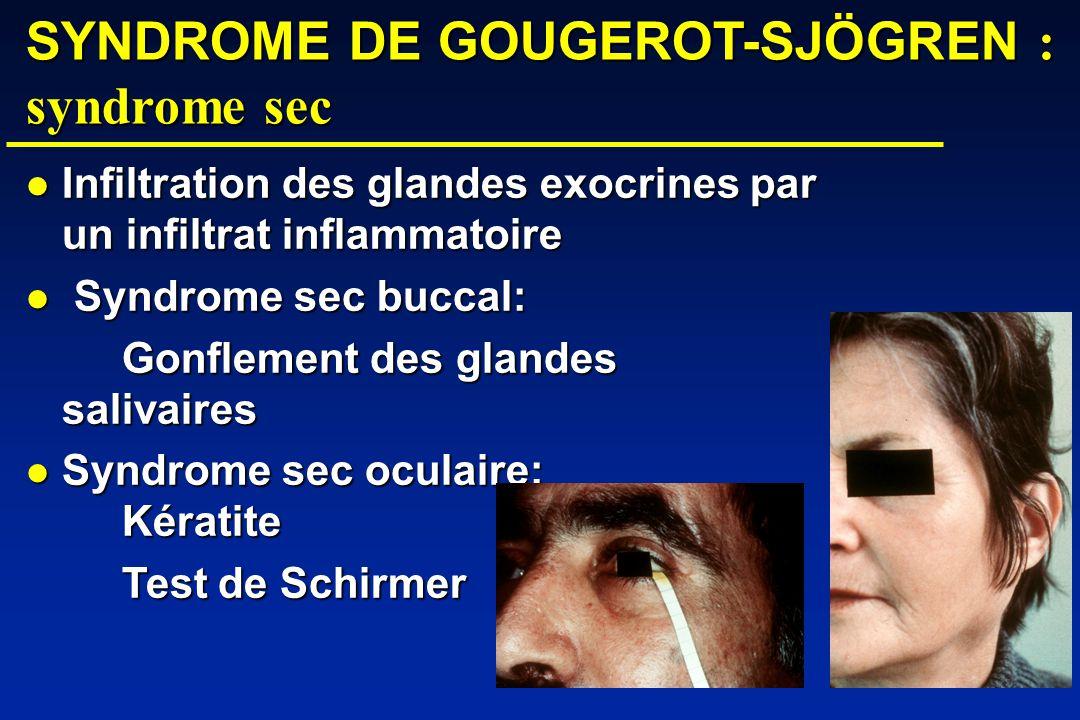 SYNDROME DE GOUGEROT-SJÖGREN : syndrome sec