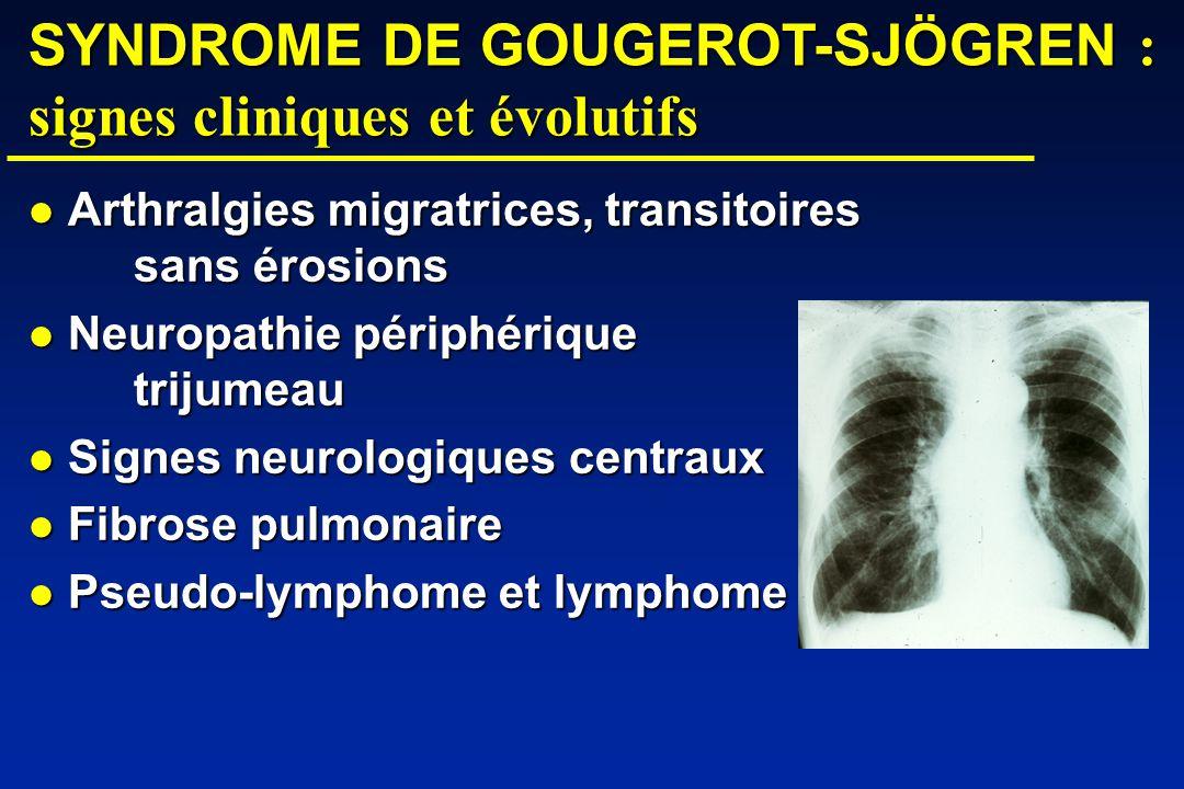 SYNDROME DE GOUGEROT-SJÖGREN : signes cliniques et évolutifs