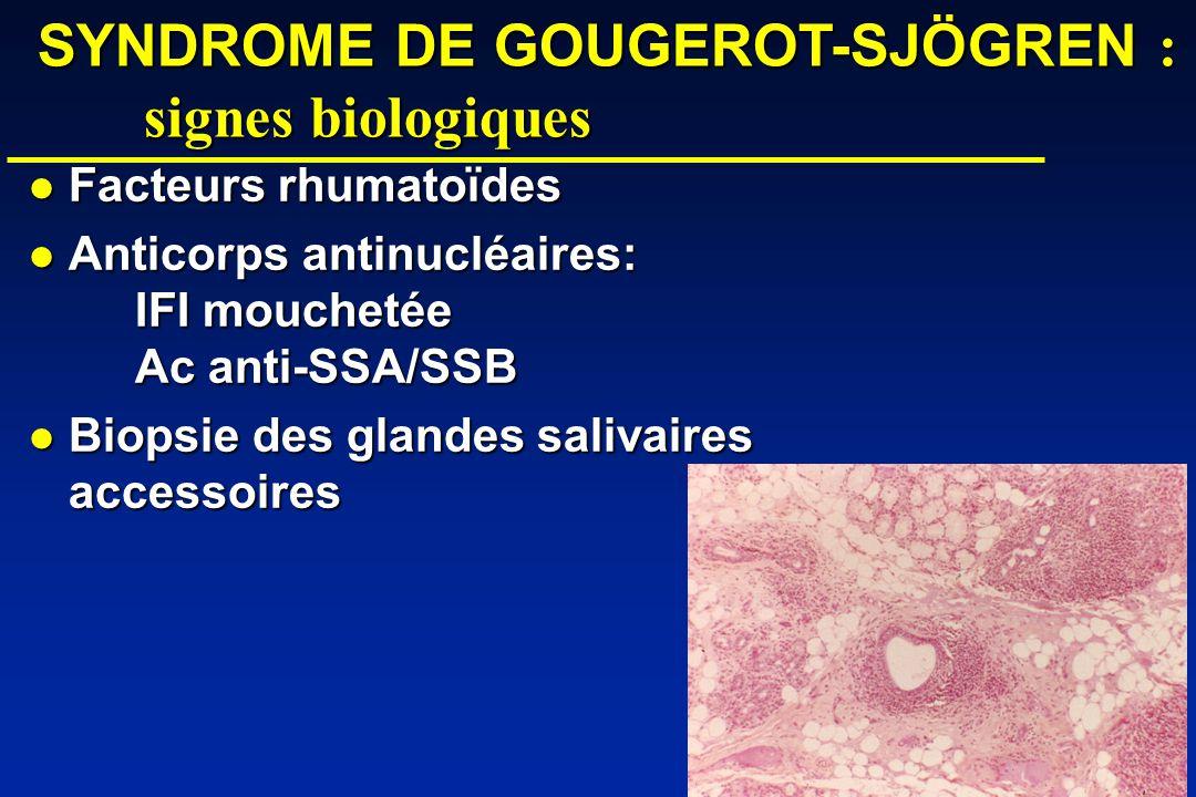 SYNDROME DE GOUGEROT-SJÖGREN : signes biologiques