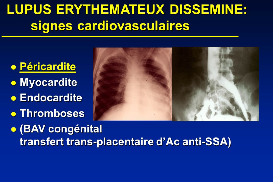 LUPUS ERYTHEMATEUX DISSEMINE: signes cardiovasculaires