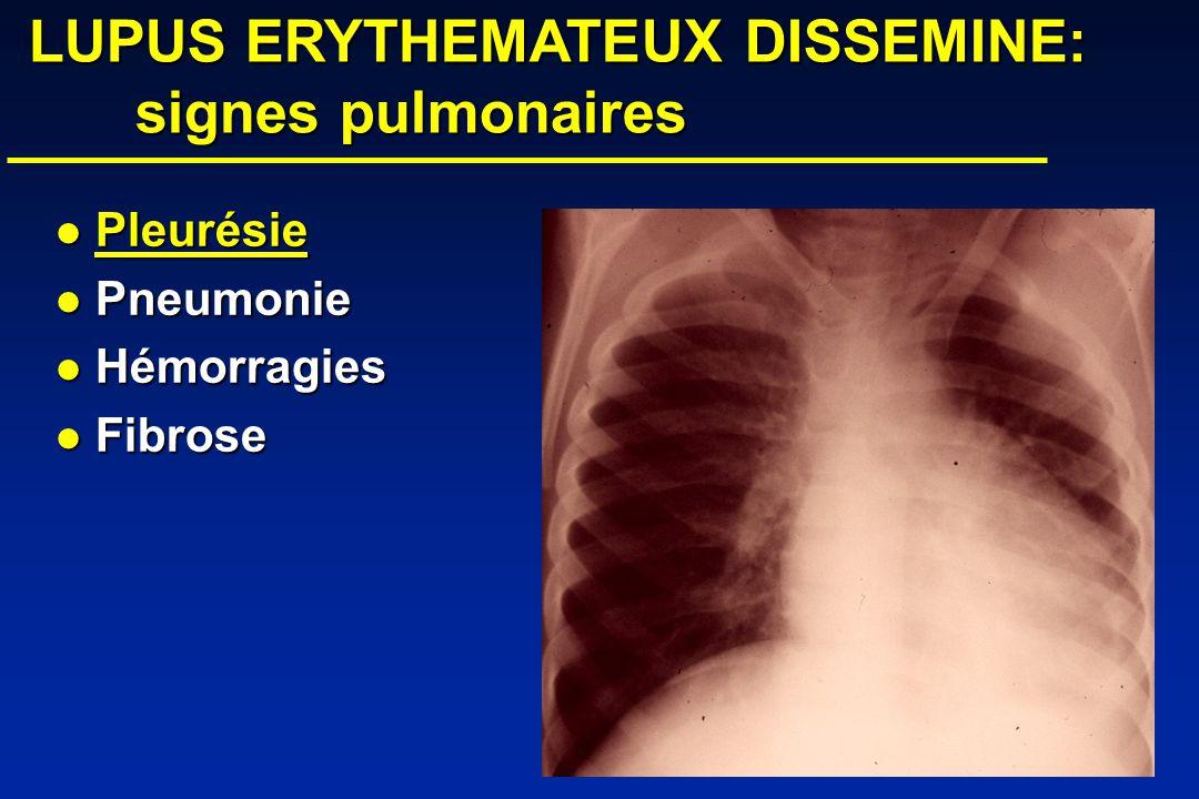 LUPUS ERYTHEMATEUX DISSEMINE: signes pulmonaires