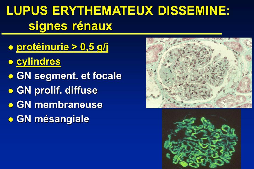 LUPUS ERYTHEMATEUX DISSEMINE: signes rénaux
