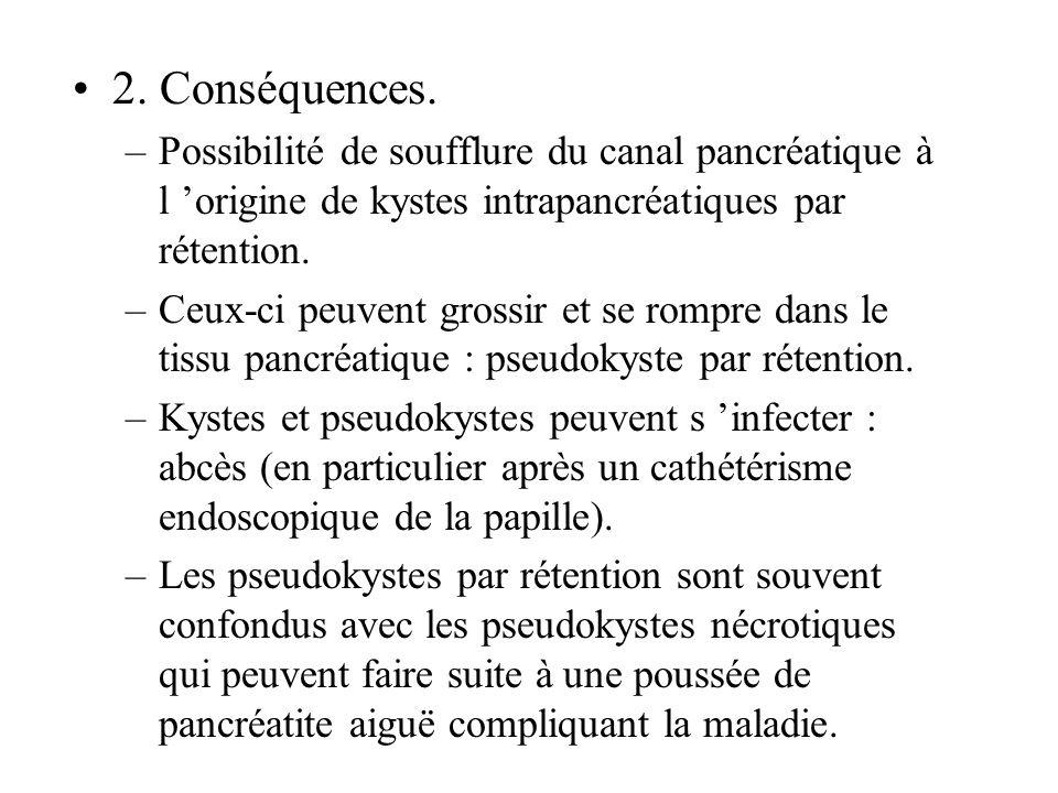 2. Conséquences. Possibilité de soufflure du canal pancréatique à l 'origine de kystes intrapancréatiques par rétention.