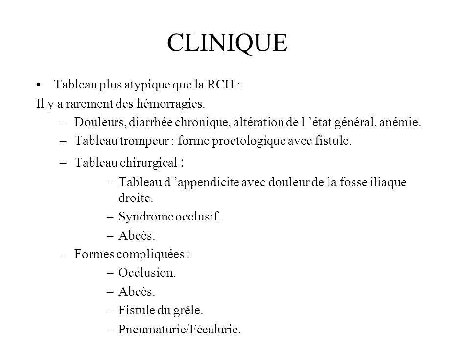 CLINIQUE Tableau plus atypique que la RCH :