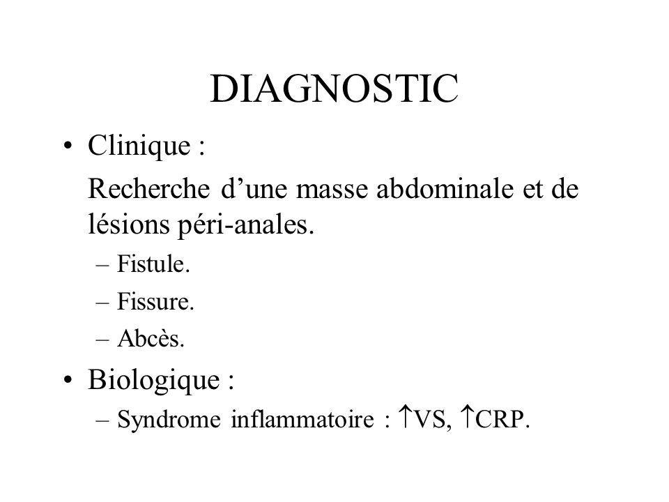 DIAGNOSTIC Clinique : Recherche d'une masse abdominale et de lésions péri-anales. Fistule. Fissure.