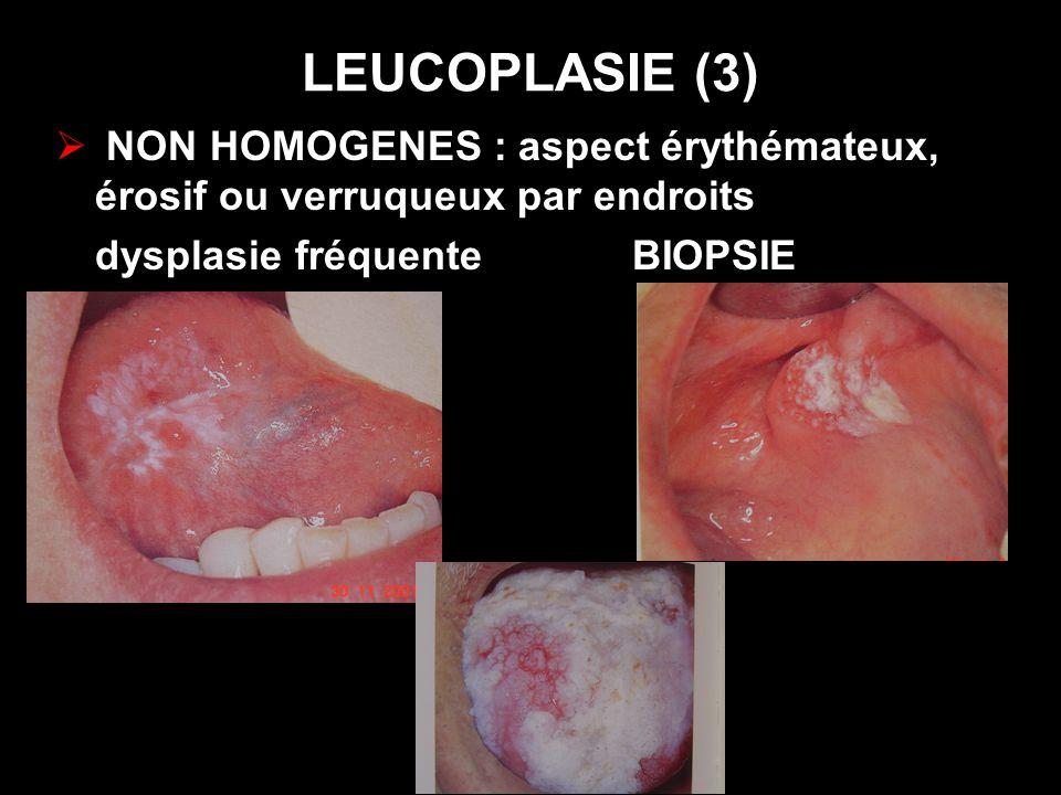 LEUCOPLASIE (3) NON HOMOGENES : aspect érythémateux, érosif ou verruqueux par endroits. dysplasie fréquente BIOPSIE.