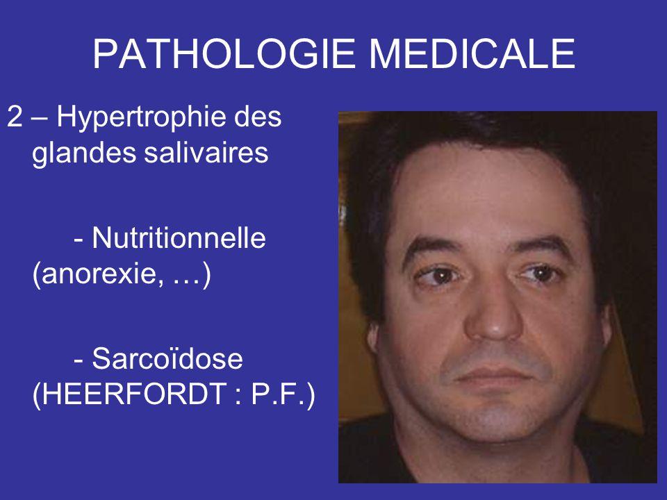 PATHOLOGIE MEDICALE 2 – Hypertrophie des glandes salivaires