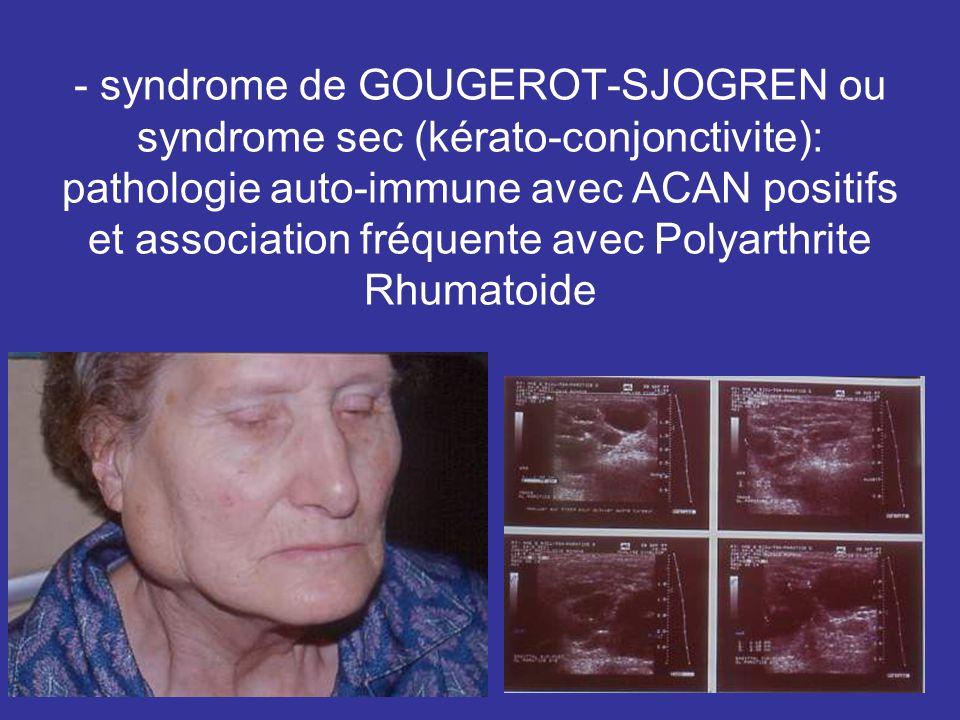 - syndrome de GOUGEROT-SJOGREN ou syndrome sec (kérato-conjonctivite): pathologie auto-immune avec ACAN positifs et association fréquente avec Polyarthrite Rhumatoide