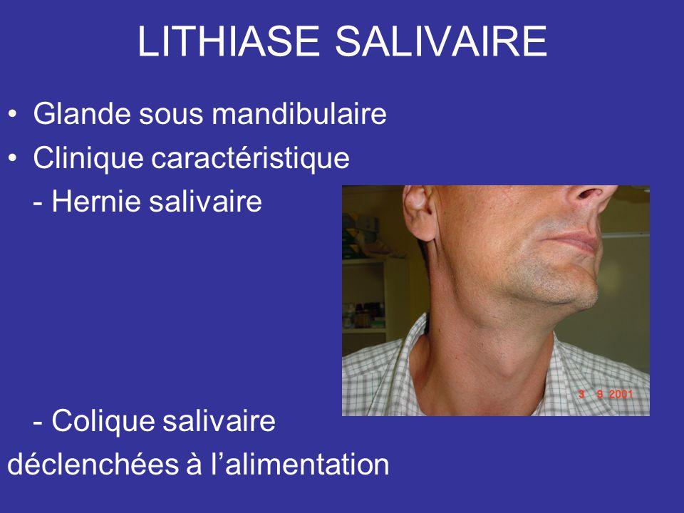 LITHIASE SALIVAIRE Glande sous mandibulaire Clinique caractéristique