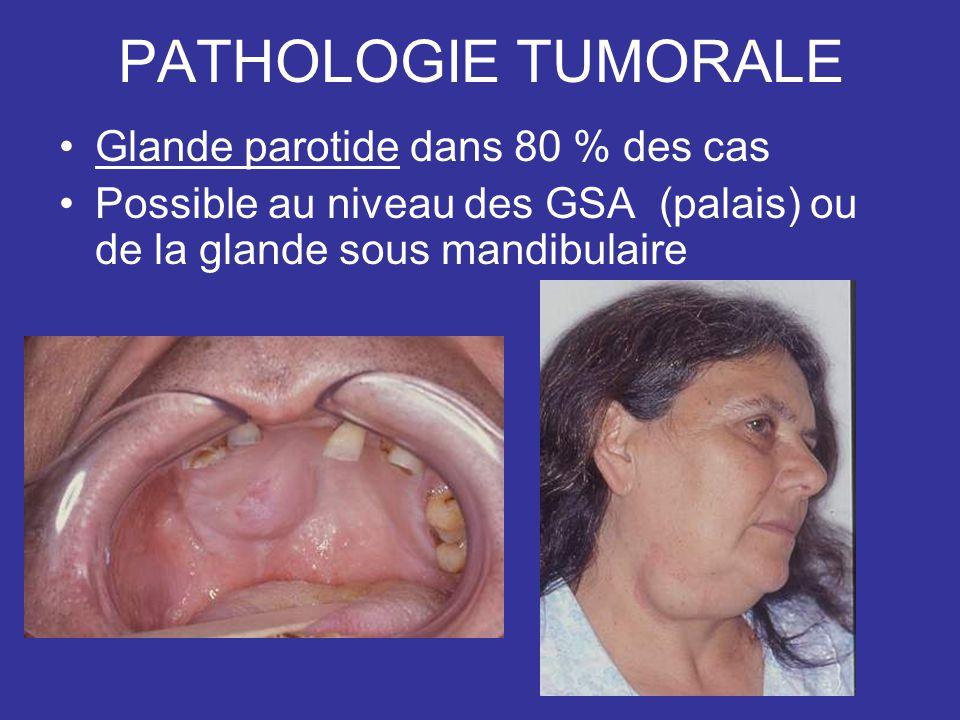 PATHOLOGIE TUMORALE Glande parotide dans 80 % des cas