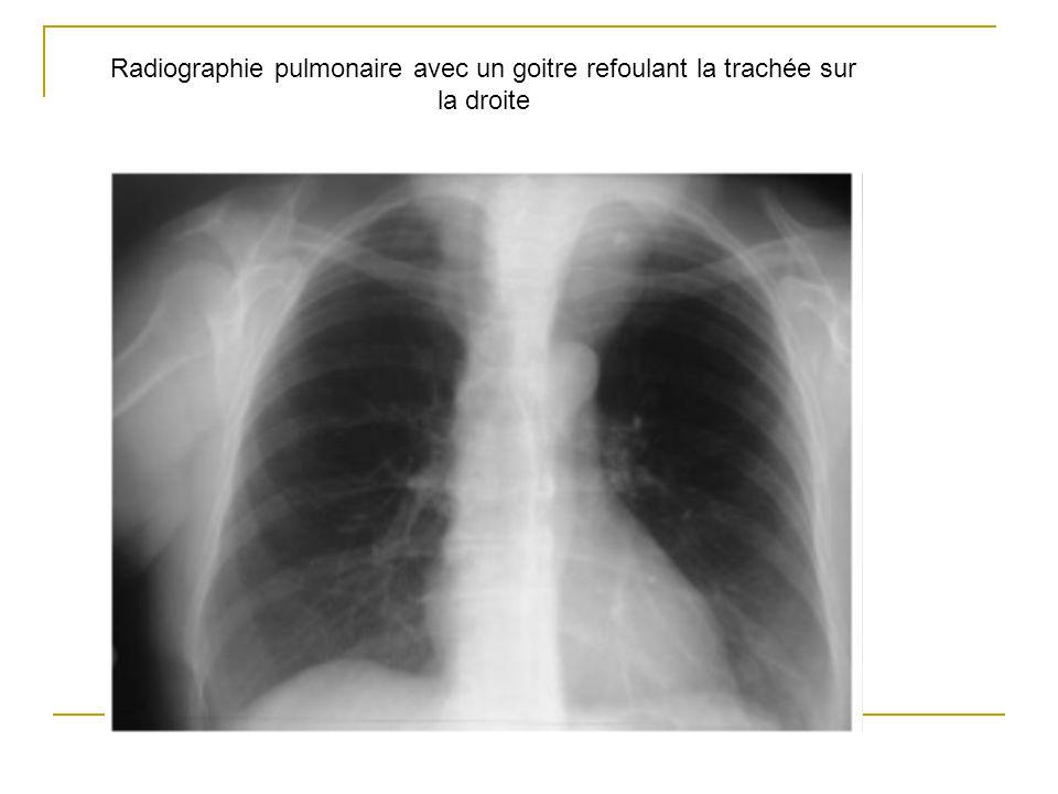 Radiographie pulmonaire avec un goitre refoulant la trachée sur la droite