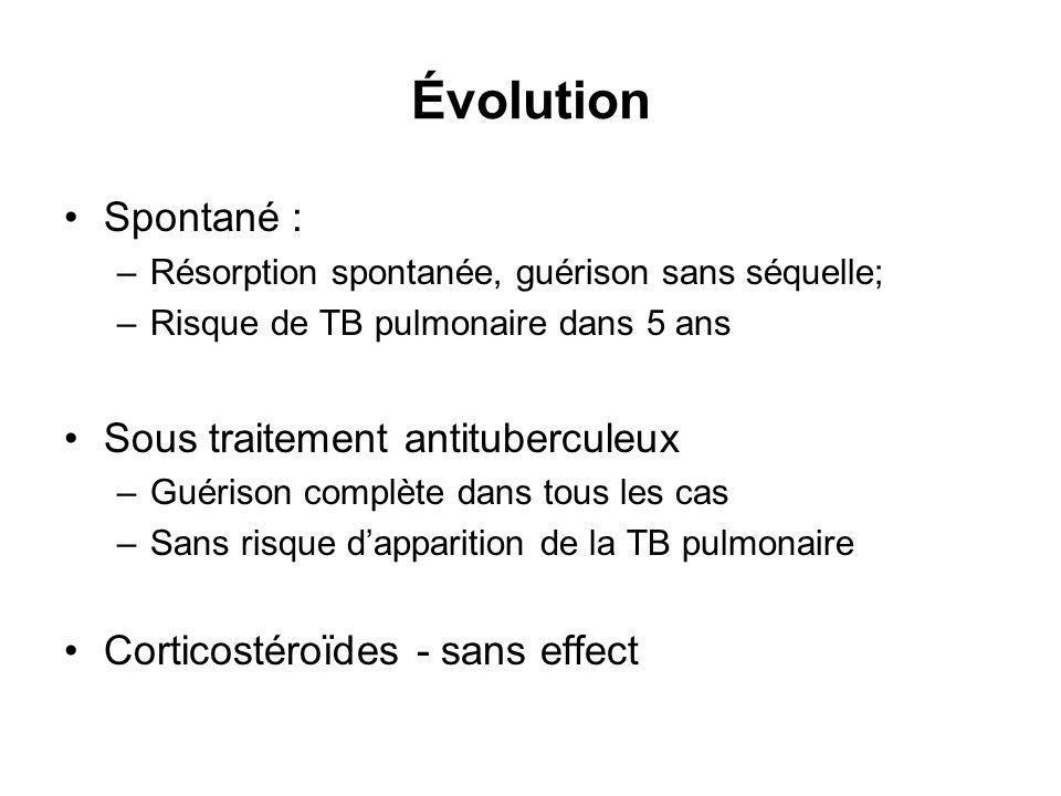 Évolution Spontané : Sous traitement antituberculeux