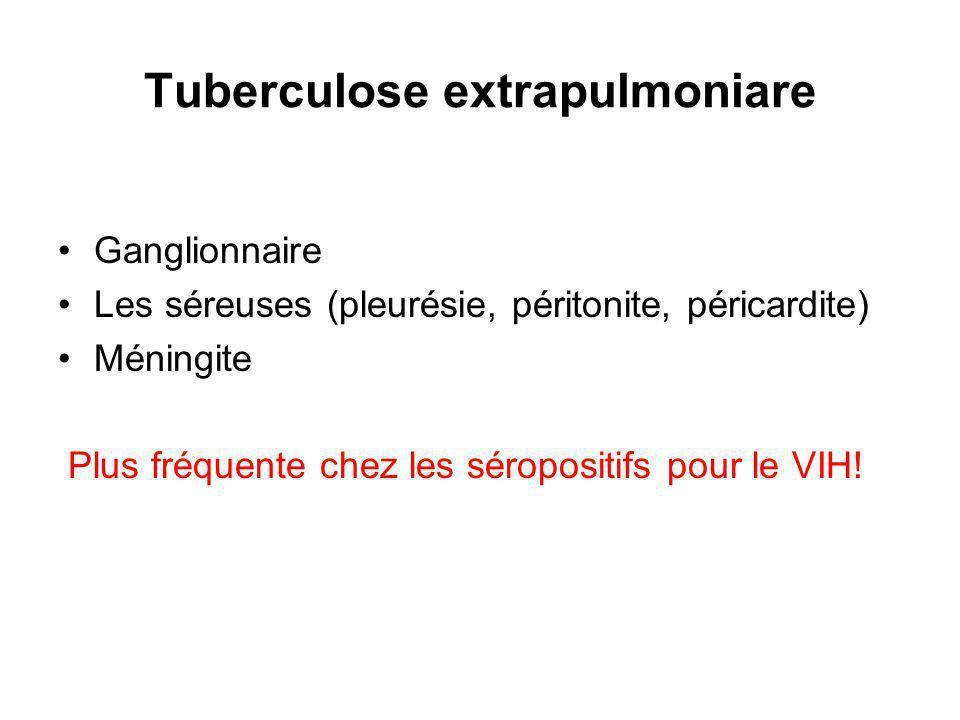 Tuberculose extrapulmoniare