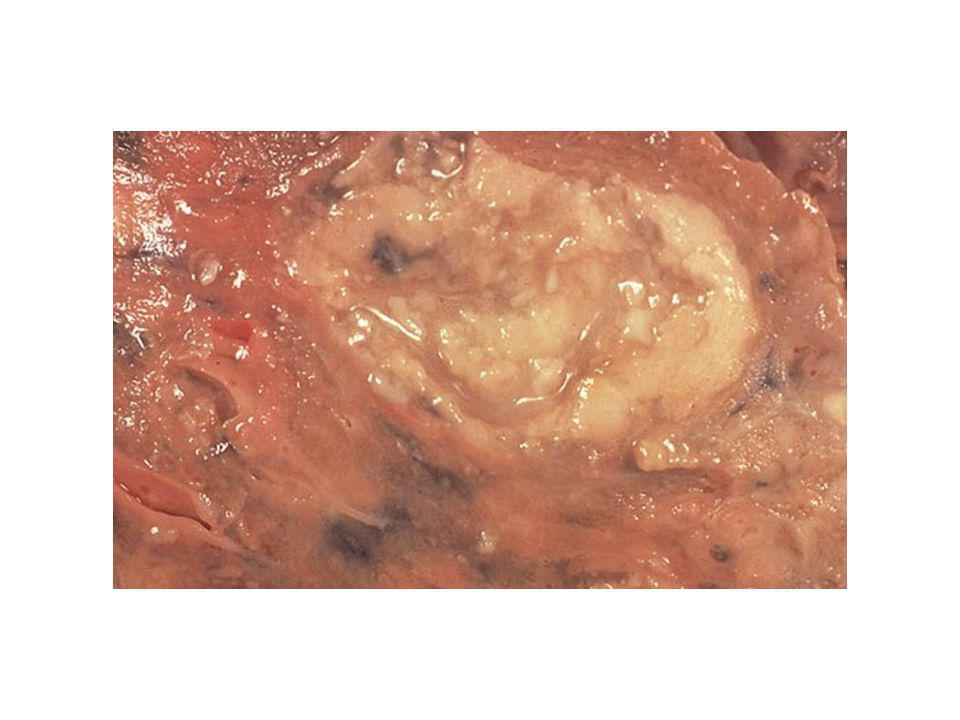 Fotografie macroscopica pe sectiune de plaman observandu-se o cavitate cu cazeum (alb) in interior