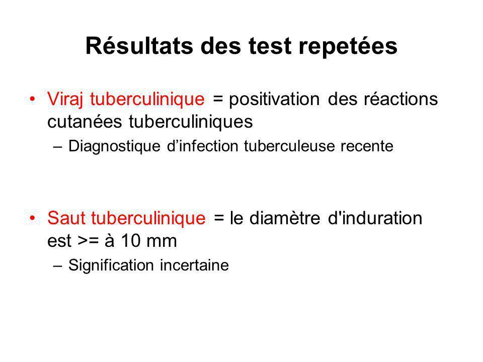 Résultats des test repetées