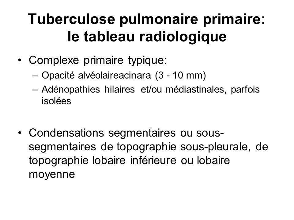 Tuberculose pulmonaire primaire: le tableau radiologique
