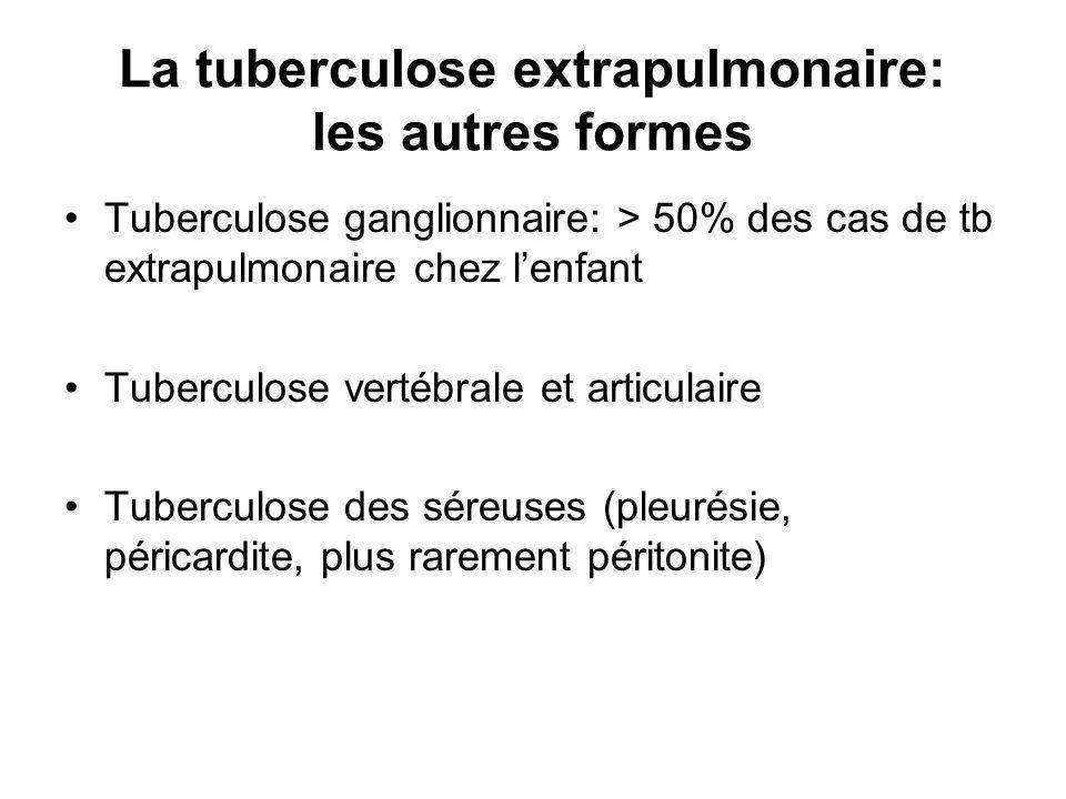 La tuberculose extrapulmonaire: les autres formes