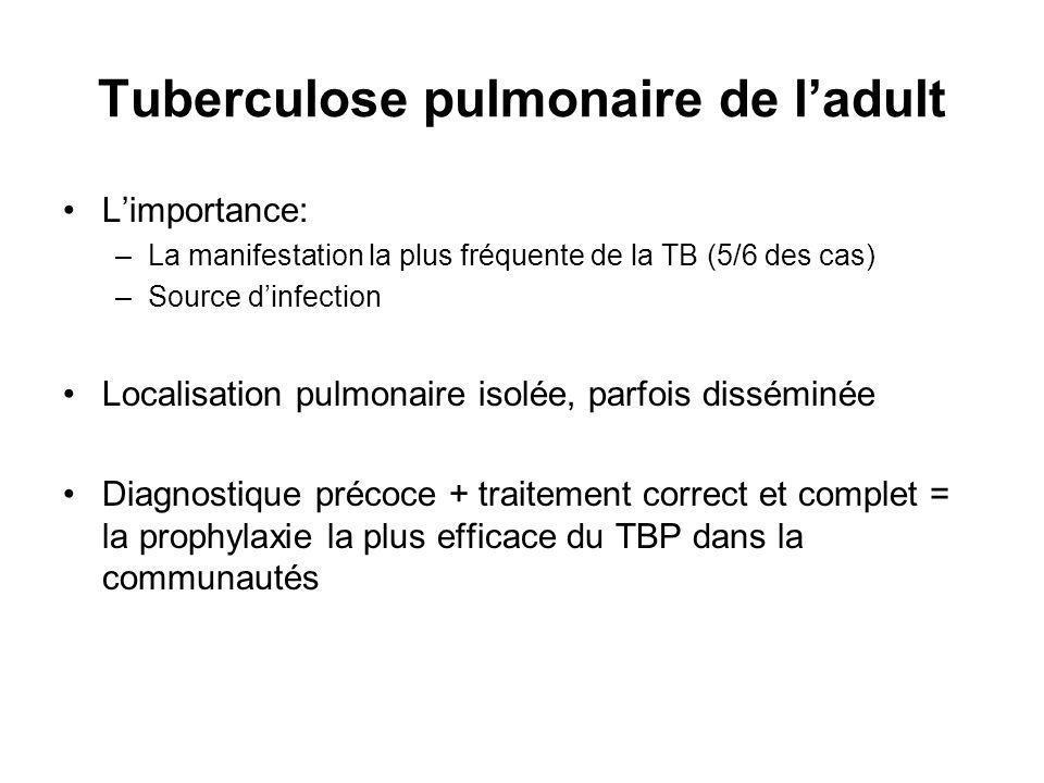 Tuberculose pulmonaire de l'adult