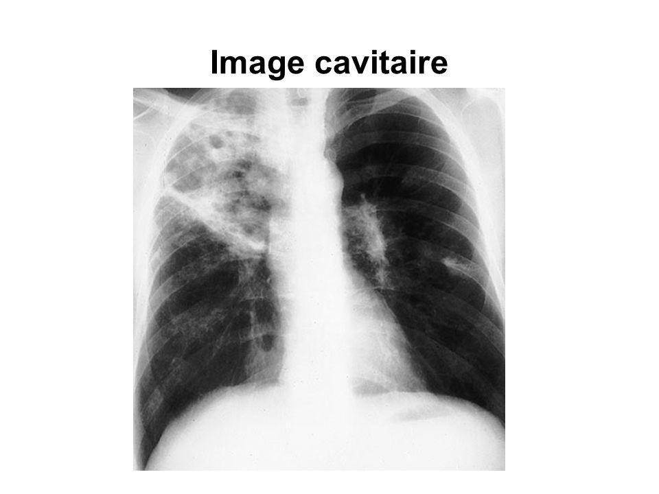 Image cavitaire