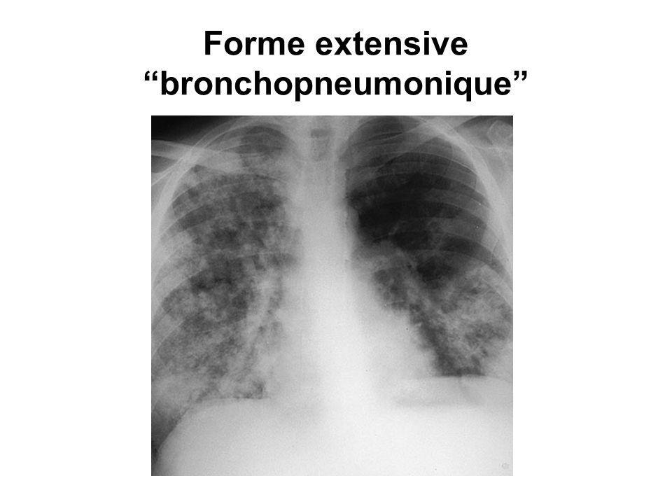 Forme extensive bronchopneumonique