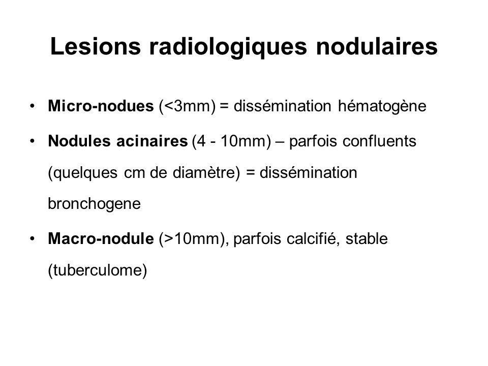 Lesions radiologiques nodulaires