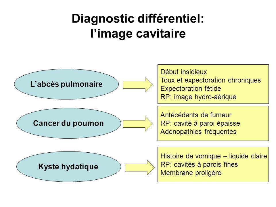 Diagnostic différentiel: l'image cavitaire